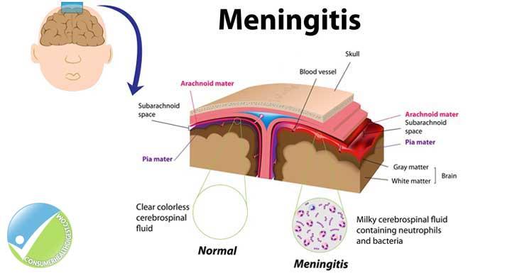 Can Pregnant Woman Contract Meningitis 109