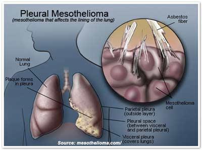 Mesothelioma Chest