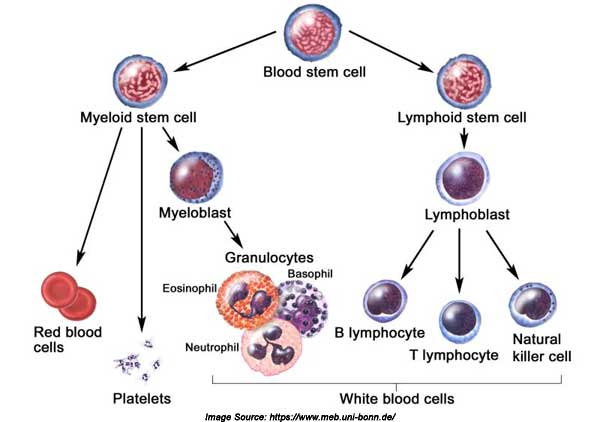 myelogenous leukemia