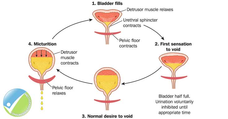 Overactive Bladder Causes And Risk Factors