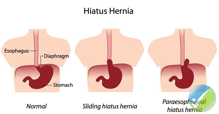 hiatal hernia: types, symptoms, causes, diagnosis and treatment, Human Body