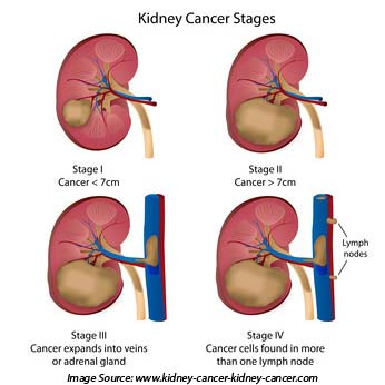 Types Of Kidney Cancer