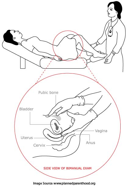 What Is A Pelvic Exam?