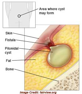 About Pilonidal Cyst