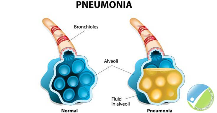 pneumonia: symptoms, causes, diagnosis and treatment, Human Body