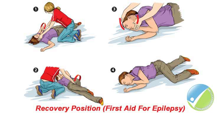 Epilepsy Treatment and Precautions