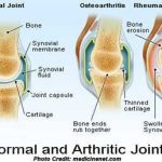Study Arthritis Degrade Bone Density