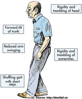 Symptoms Of Parkinsons Disease