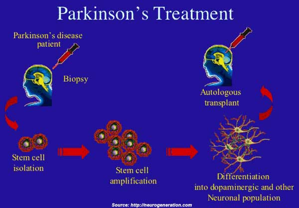Parkinson S Disease Types Symptoms Causes Diagnosis