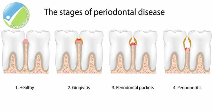 Gum Diseases Symptoms