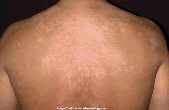 Tinea Versicolor: Causes, Symptoms, Treatment | Everyday ...