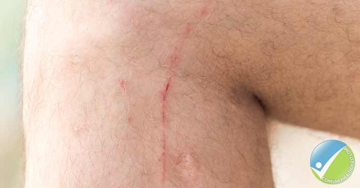 Natural, Thin Scars