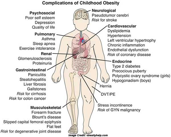 overweight/obesity Details