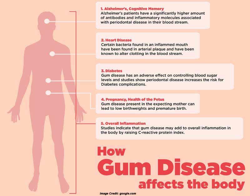 Gum Disease Info