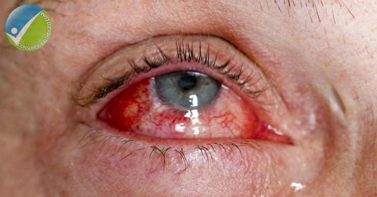 Eye Injury Symptoms and Signs