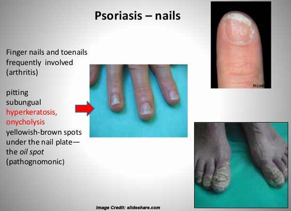 List Of 11 Common Nail Problems Everybody Ignores