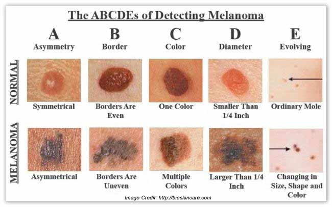 melanoma: types, symptoms, causes, diagnosis and treatment, Human Body