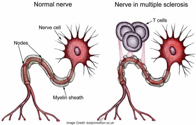 multiple-sclerosis-info