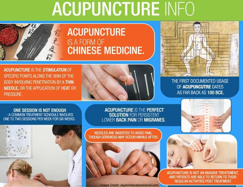 Acupuncture Info