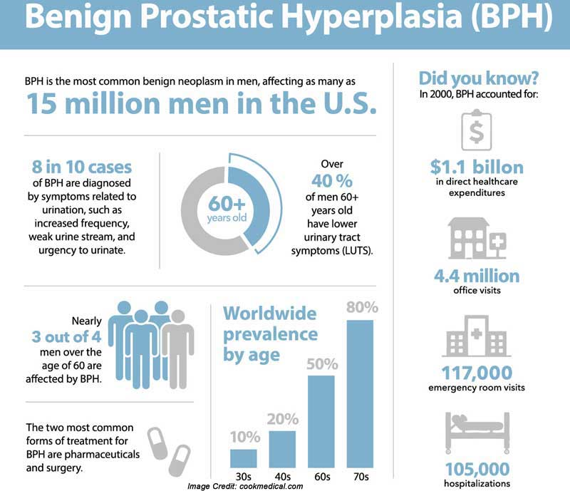 Prostatic Hyperplasia