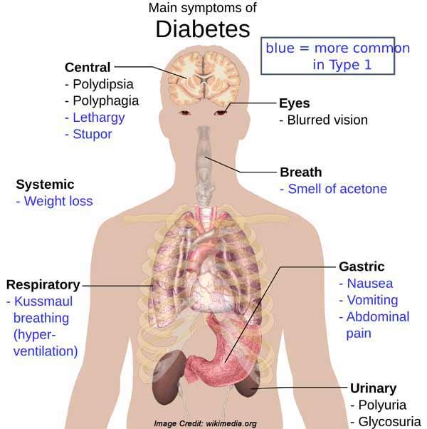 Symptom Diabetes