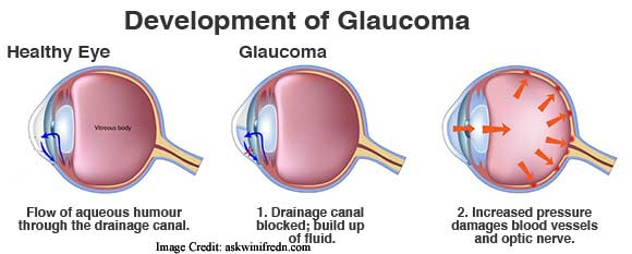 Purpose of National Glaucoma Awareness Month