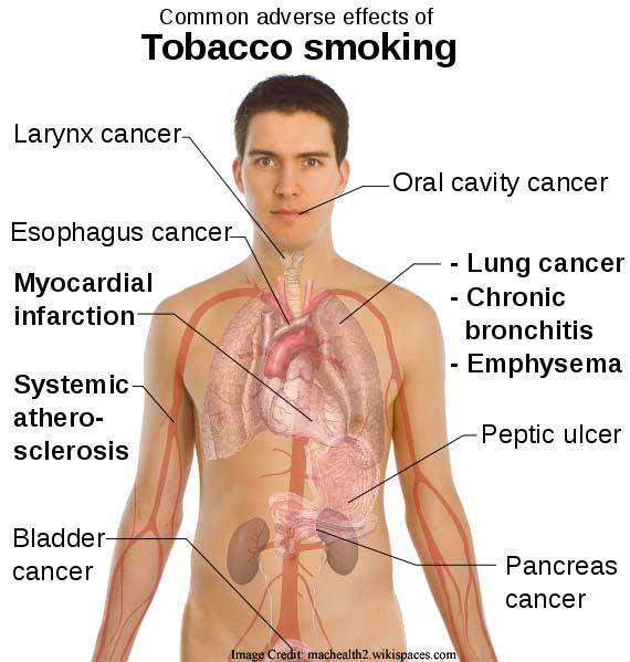 Tobacco Smoking Info