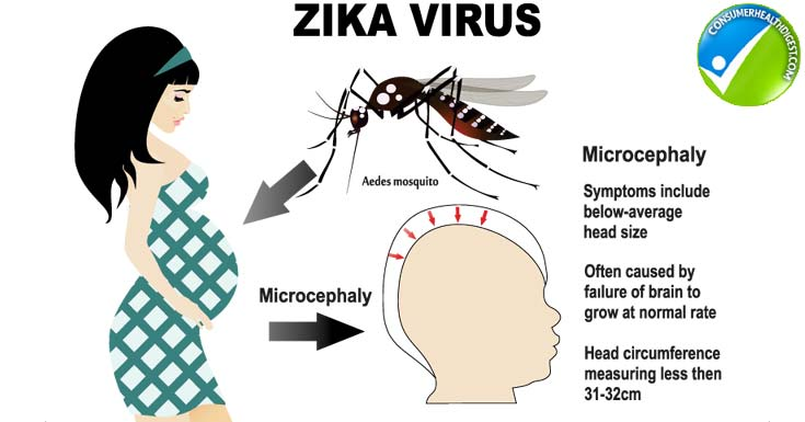 Zika Virus and Pregnancy