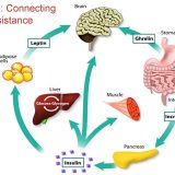 Obesity, Metabolic Inflammation and Insulin Resistance: How They Are Connected To Each Other?
