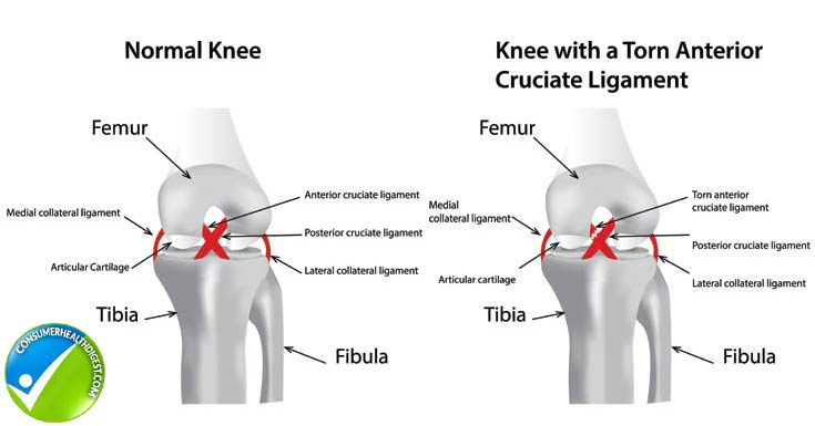 an analysis of acl injuries in athletes The interviews were followed by a thematic content analysis  anterior cruciate  ligament (acl) injury is a major problem in sport, especially in.