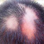 Alopecia Areata – A Mysterious But Harmless Condition