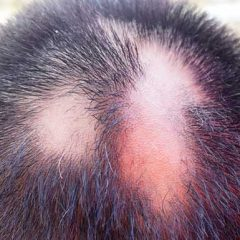 Alopecia Areata – A Mysterious But Harmless Condition