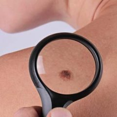 Is There a Reason to be Scared If you Notice Atypical Mole?