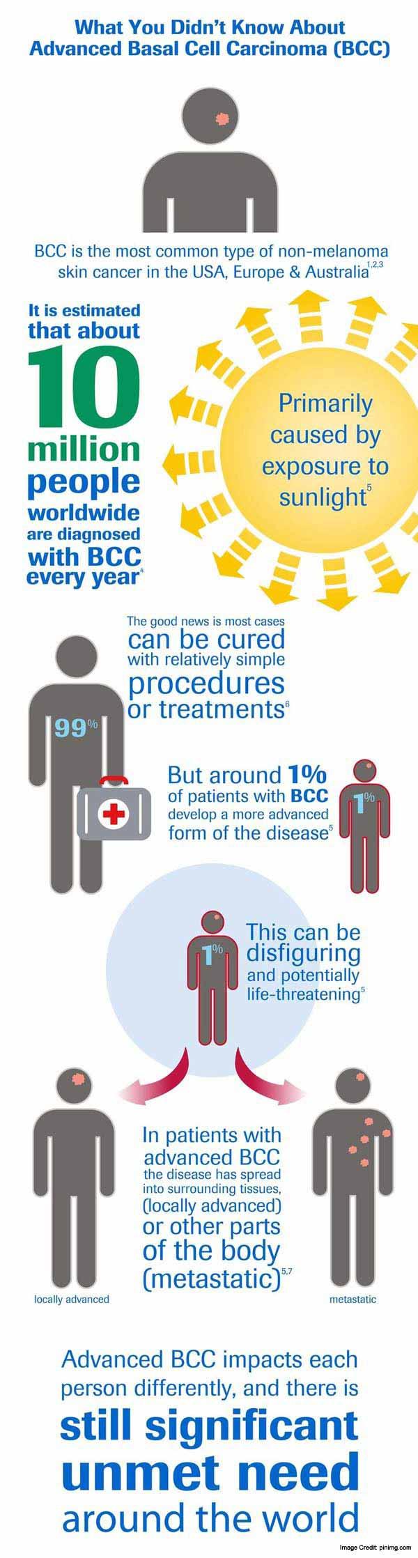 Carcinoma Info