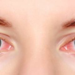 How to Treat Itchy Eyes Naturally?