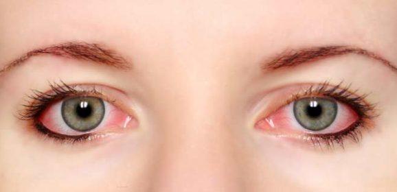 Treat Itchy Eyes Naturally