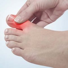 What Can You Do to Help Prevent and Manage Gout?