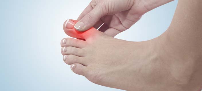 Prevent and Manage Gout
