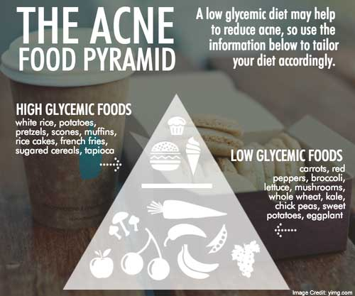 Acne Food