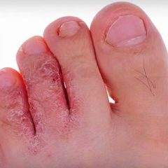 What is Athlete's Foot and How to Prevent it?
