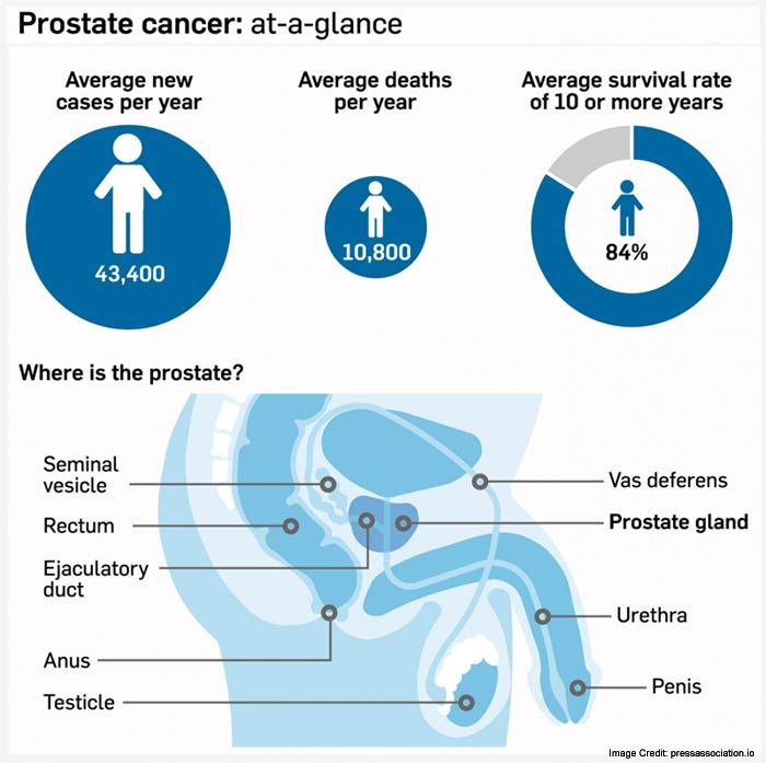 Prostate Cancer Glance Info