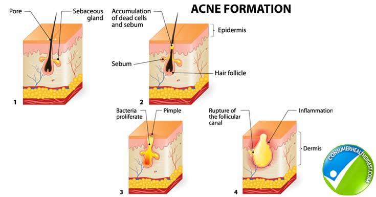 Acne Details Info