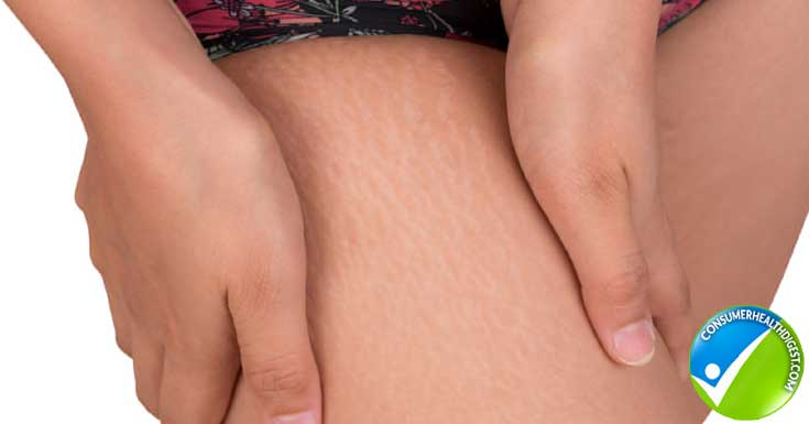 Cellulite Treatment Detail