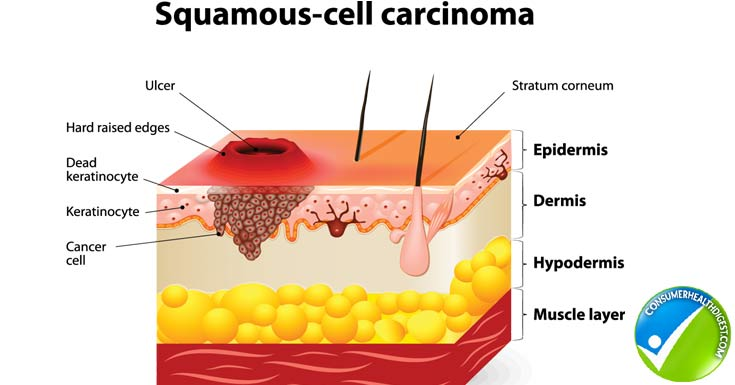What Are The Causes And Treatments For Squamous Cell Carcinoma