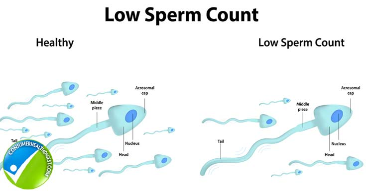 The Sperm Count