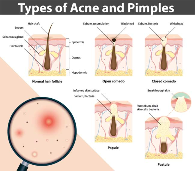 Acne Pimple Info
