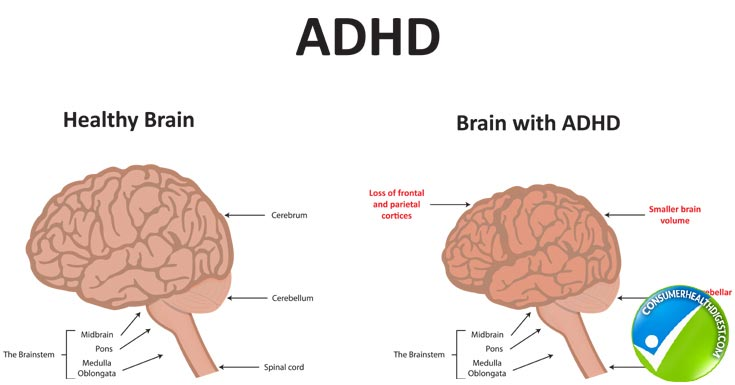 ADHD ADD The Brain