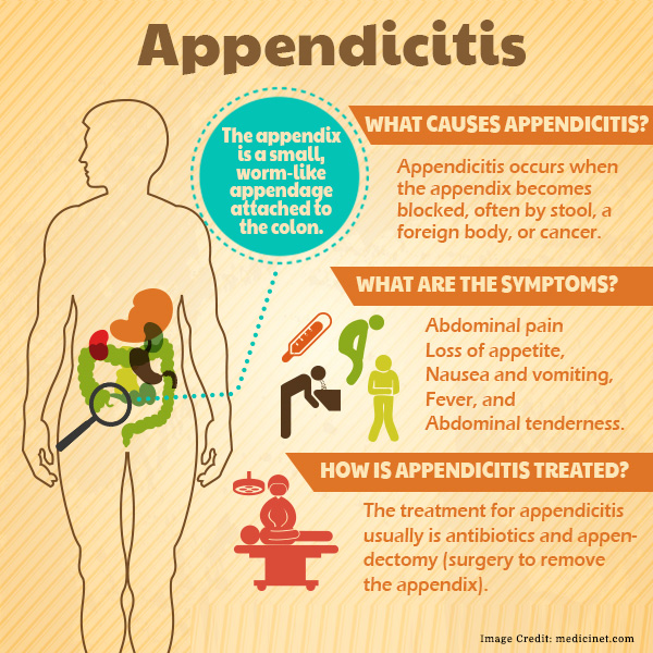 appendicitis: causes, symptoms, diagnosis and self care, Human Body