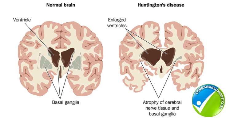 Fats affects Brain