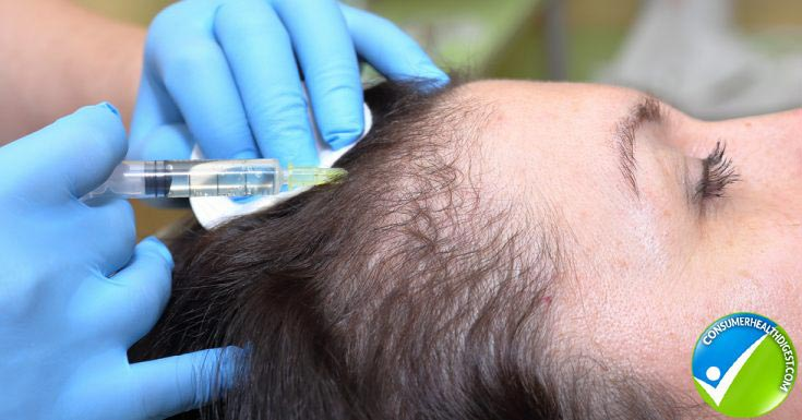Hair Loss Therapies